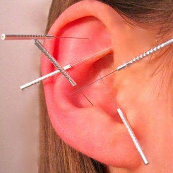 akapunktur 2